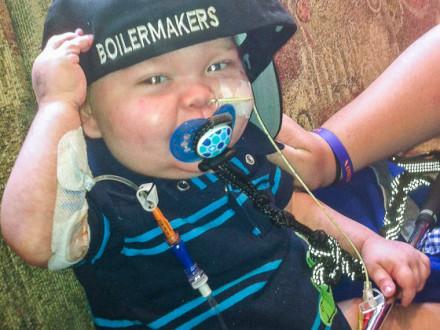 Two-year-old Conon Kennedy battles Crohn's disease.